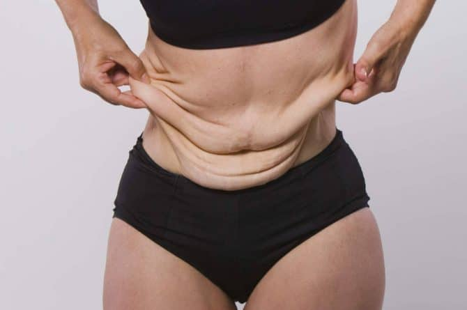Loose Skin after Weight Loss with Phentermine